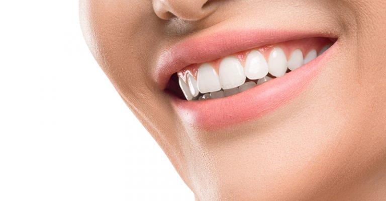 dental-implants-m